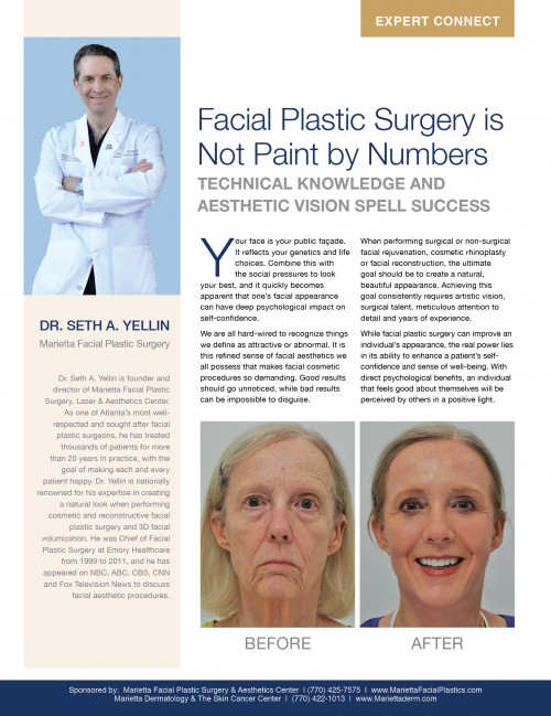 Facial Plastic Surgery is Not Paint by Numbers